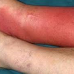 Cellulitis and lymphoedema can go hand in hand sometimes