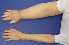 Lymphoedema post cacner treatment, the late side effect