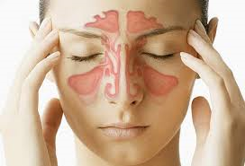 Sinusitis and tretment