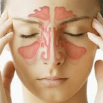 Sinusitis and tretment